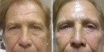 BLEPHAROPLASTY: UPPER AND LOWER BLEPHAROPLASTY