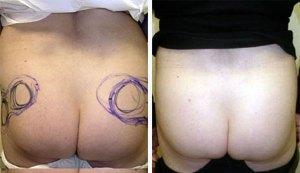 BRAZILIAN BUTT LIFT: BUTTOCK FAT AUGMENTATION