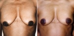 BREAST LIFT: BEFORE AND AFTER LOLLIPOP BREAST LIFT