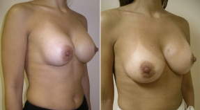 BREAST AUGMENTATION: BREAST IMPLANT CORRECTION