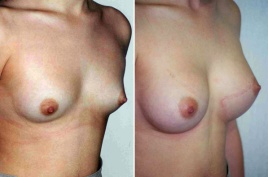BREAST AUGMENTATION: BEFORE AND 4 MONTHS AFTER TRANSAXILLARY SALINE IMPLANT BREAST AUGMENTATION 230 CC