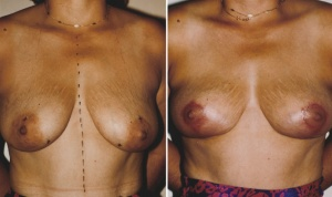BREAST LIFT: BEFORE AND 6 WEEKS AFTER BREAST LIFT