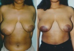 BREAST REDUCTION: UNILATERAL BREAST REDUCTION PERI-AREOLAR DOUGHNUT
