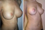 BREAST IMPLANT EXCHANGE 350cc AND ABDOMINAL LIPOSCULPTURE