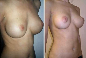 BREAST AUGMENTATION: IMPLANT EXCHANGE AND ABDOMINAL LIPOSUCTION