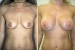 BREAST AUGMENTATION : BEFORE AND AFTER BREAST AUGMENTATION WITH 355 CC SILICONE GEL IMPLANTS PERI-AREOLAR APPROACH