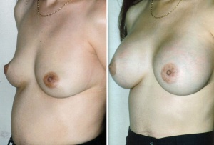 BREAST AUGMENTATION: BEFORE AND AFTER BREAST AUGMENTATION THROUGH AXILLA WITH SALINE IMPLANTS