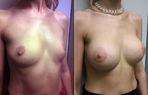 BREAST AUGMENTATION: BEFORE AND AFTER BREAST AUGMENTATION SILICONE GEL 375 CC