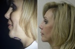 NECKLIFT: BEFORE AND AFTER LASER NECKLIFT