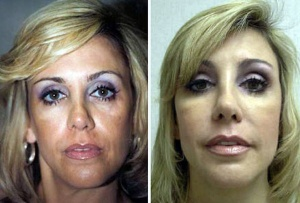 FAT INJECTIONS: BEFORE AND AFTER FAT INJECTIONS TO CHEEKS AND EYELIDS