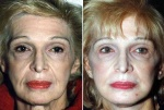 FACELIFT: BEFORE AND AFTER LOWERFACELIFT