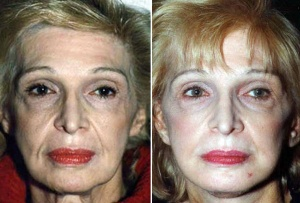 FACELIFT: BEFORE AND AFTER FACELIFT