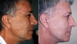 MALE FACELIFT: BEFORE AND AFTER LOWER FACELIFT