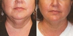 LIPOSCULPTURE: BEFORE AND AFTER LIPOSUCTION OF THE NECK