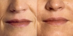 FILLERS: BEFORE AND AFTER SMILE LINE FILLING RESTYLANE