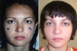 FAT INJECTIONS: EYELIDS AND CHEEKS BEFORE AND AFTER