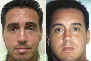 EYES: BEFORE AND AFTER LOWER BLEPHAROPLASTY FAT AND BOTOX INJECTIONS