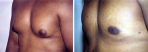 LIPOSUCTION: MALE CHEST REDUCTION BEFORE AND AFTER