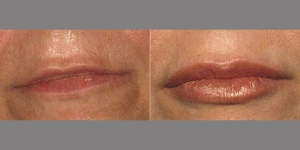 FILLERS: BEFORE AND AFTER LIP ENLARGEMENT WITH FILLER INJECTION