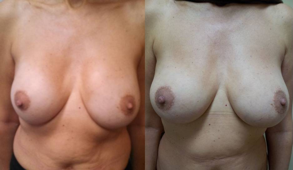 REPLACEMENT OF IMPLANTS WITH FAT