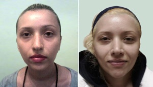 RHINOPLASTY: BEFORE AND ONE WEEK AFTER RHINOPLASTY