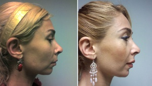 RHINOPLASTY: BEFORE AND AFTER REVISION RHINOPLASTY