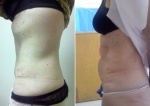 ABDOMINOPLASTY: BEFORE AND AFTER