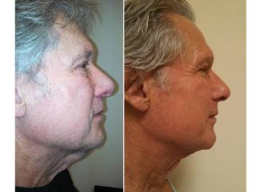 Before and After Neck Lift and Jowl Liposuction