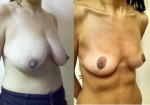 BREAST LIFT LIPOSUCTION WEIGHT LOSS