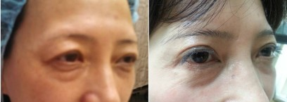 BEFORE AND AFTER ASIAN BLEPHAROPLASTY