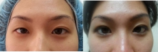 Before and After Creation of Double Eyelid Fold on the Right for Symmetry
